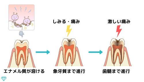 虫歯の進行の様子を図で表しています。